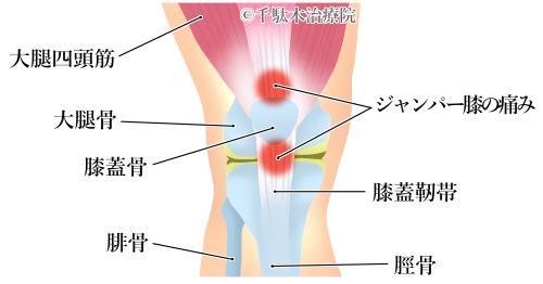 膝の痛み_膝自体が悪い。(靭帯や半月板などを傷めている)