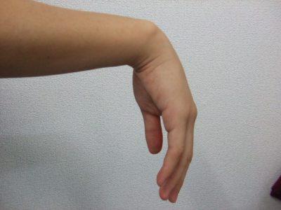 撓骨神経麻痺