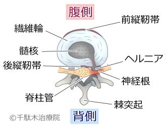 椎間板ヘルニア_椎間板の正常ではないジョウタ