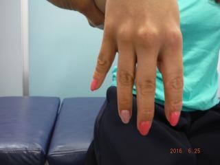 撓骨神経麻痺(指が開かない)